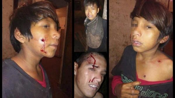 __Arg_Formosa__Represión a niños Wichi